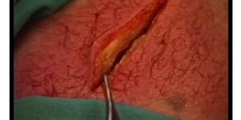 Différentes méthodes pour suturer une plaie